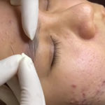 Asian Spa Extractions. Demonstration Video