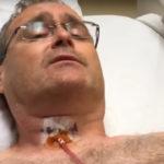 Dr. Gilmore's Neck!  Doctor Becomes Impatient Patient, lol